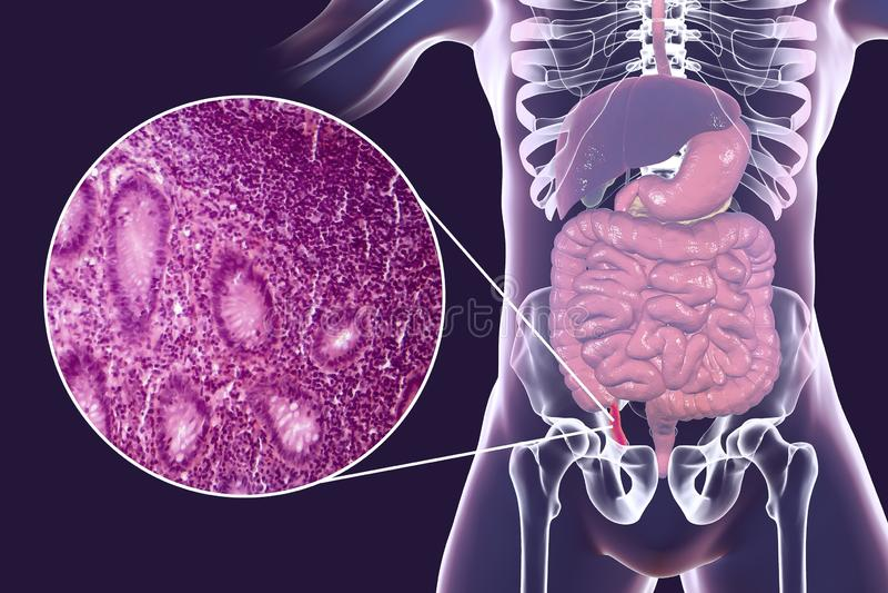 Acute appendicitis, illustration and light micrograph. Acute appendicitis, 3D illustration of human body with inflammed appendix and light micrograph, photo vector illustration