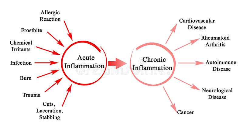 Acute and Chronic Inflammation stock illustration