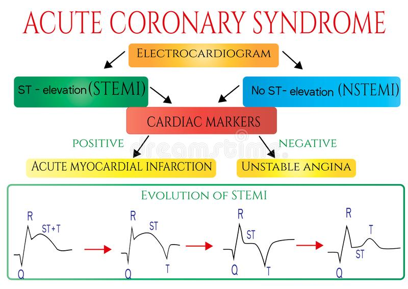Acute coronary syndrome. Schematic Electrocardiogram of myocardial infarction( heart attack). royalty free illustration