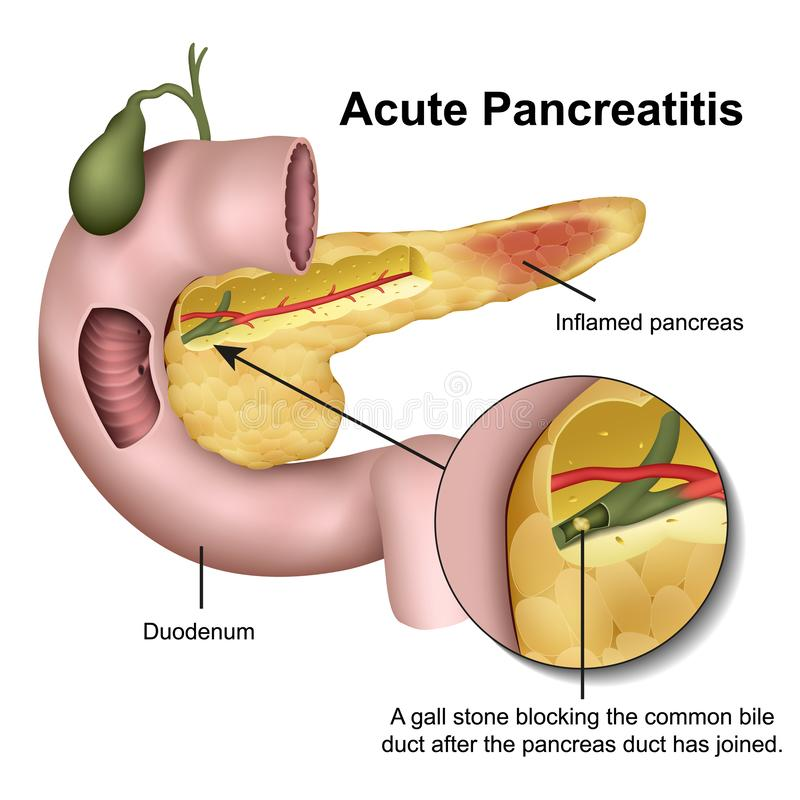 Acute pancreatitis 3d medical  illustration on white background. Eps 10 stock illustration