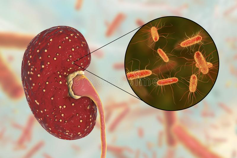 Acute pyelonephritis, medical concept, and close-up view of bacteria Escherichia coli royalty free stock photography