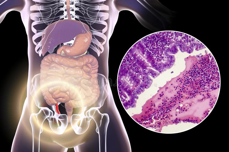 Acute suppurative appendicitis, illustration and light micrograph. Acute suppurative appendicitis, 3D illustration of human body with inflammed appendix and stock illustration