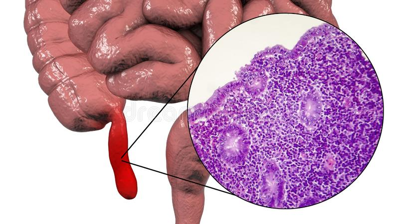 Acute suppurative appendicitis, illustration and light micrograph. Acute suppurative appendicitis, 3D illustration of human intestine with inflammed appendix and stock illustration