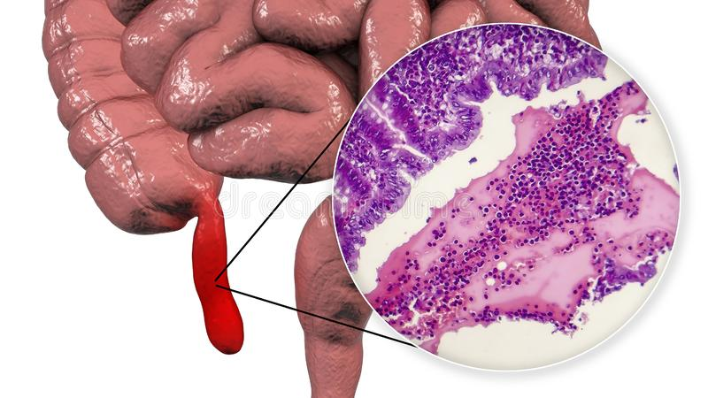 Acute suppurative appendicitis, illustration and light micrograph. Acute suppurative appendicitis, 3D illustration of human intestine with inflammed appendix and royalty free illustration