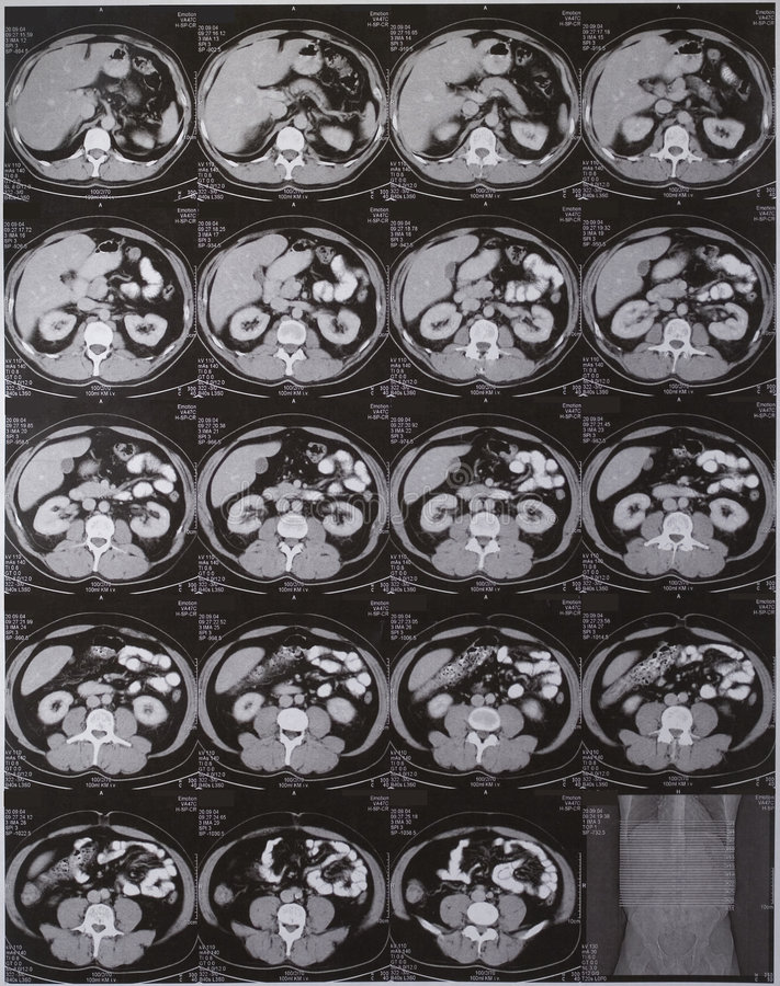 Addome di CT immagini stock libere da diritti