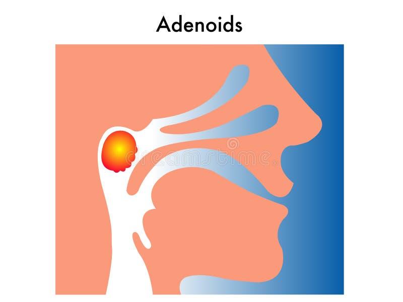 Adenóides ilustração do vetor