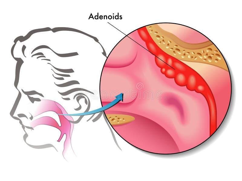 Adenoïde vegetaties vector illustratie