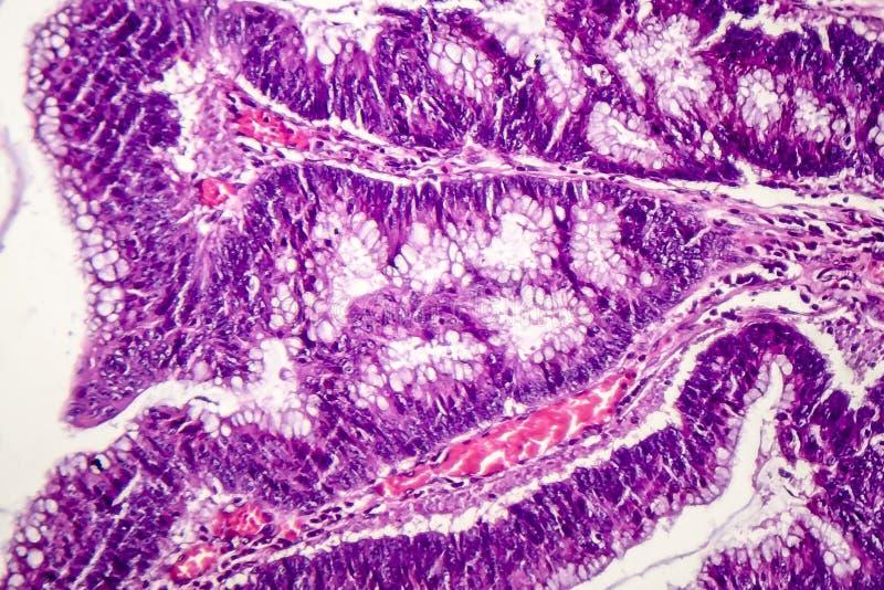 Adenocarcinoma de los dos puntos, cáncer de los dos puntos fotografía de archivo