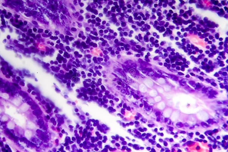 Adenocarcinoma intestinal mal distinguida, micrográfo ligero imágenes de archivo libres de regalías