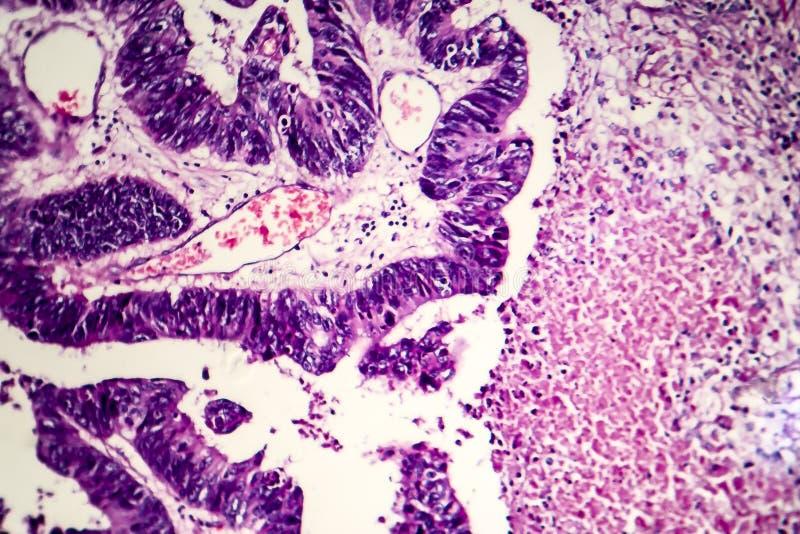 Adenocarcinoma intestinale differenziato, micrografo leggero fotografia stock libera da diritti