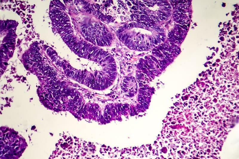 Adenocarcinoma intestinale differenziato, micrografo leggero immagini stock