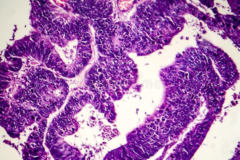 Adenocarcinoma intestinale differenziato, micrografo leggero fotografie stock libere da diritti