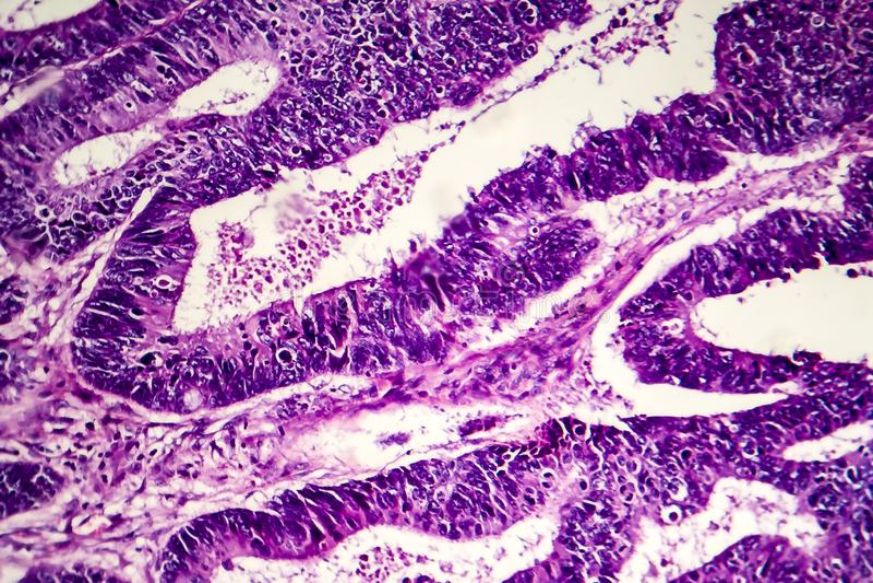 Adenocarcinoma intestinale differenziato, micrografo leggero immagini stock libere da diritti