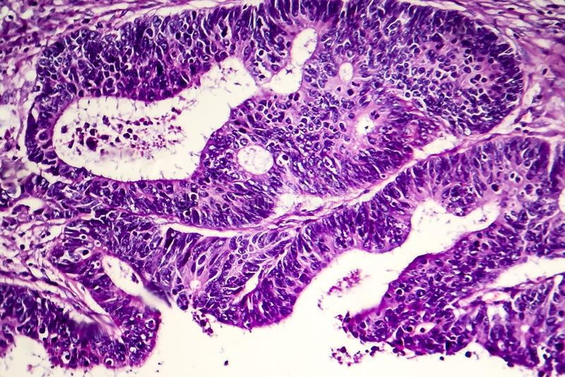 Adenocarcinoma intestinale differenziato, micrografo leggero immagine stock libera da diritti