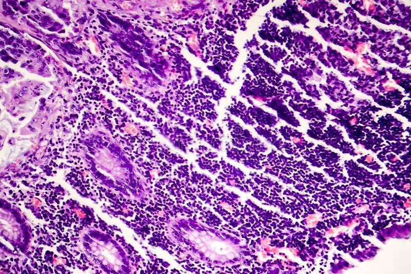 Adenocarcinoma intestinale male differenziato, micrografo leggero immagine stock libera da diritti