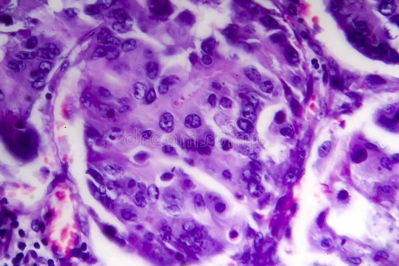Adenocarcinoma intestinale male differenziato, micrografo leggero fotografie stock