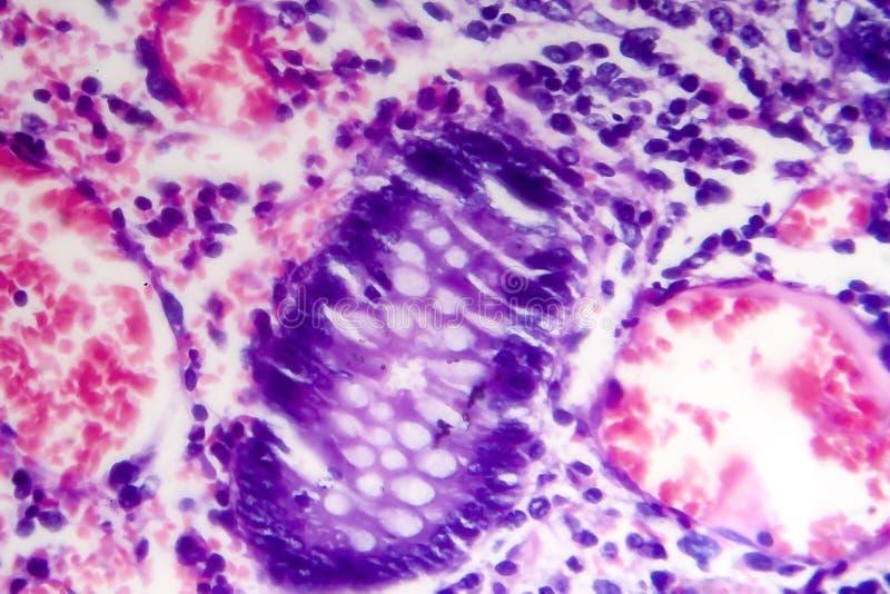 Adenocarcinoma intestinale male differenziato, micrografo leggero immagini stock libere da diritti