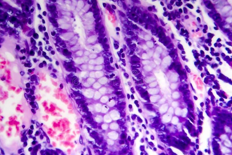 Adenocarcinoma intestinale male differenziato, micrografo leggero fotografia stock