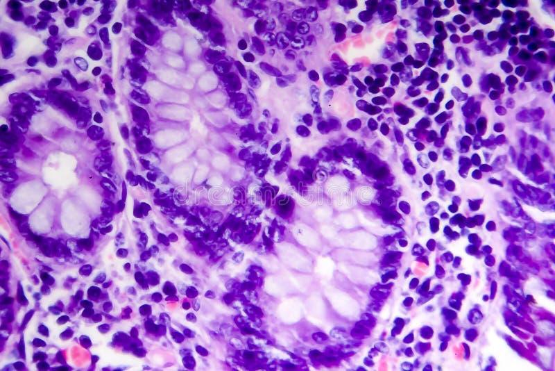 Adenocarcinoma intestinale male differenziato, micrografo leggero immagini stock