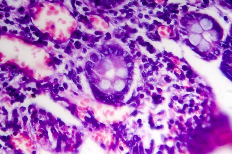 Adenocarcinoma intestinale male differenziato, micrografo leggero immagine stock