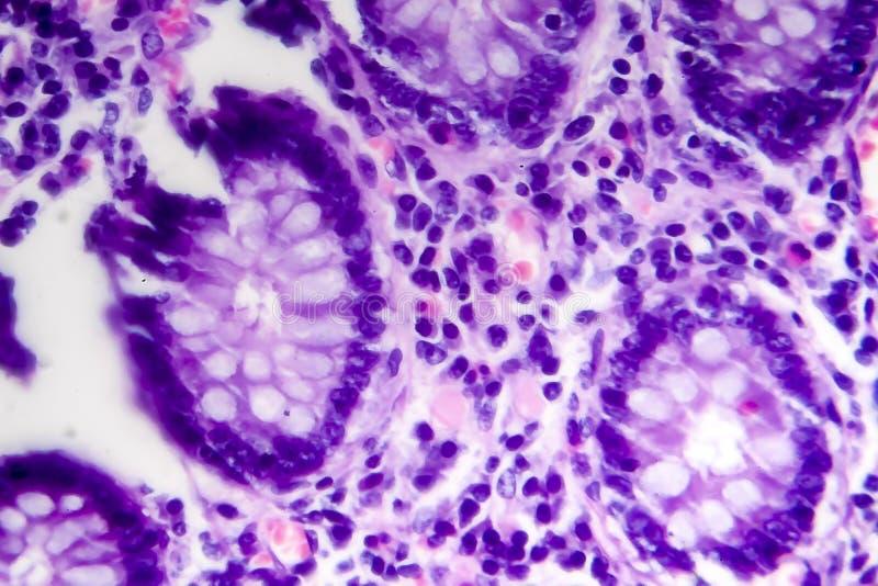 Adenocarcinoma intestinale male differenziato, micrografo leggero fotografia stock libera da diritti