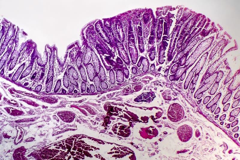 Adenocarcinoma vellosa de los dos puntos, micrográfo ligero foto de archivo
