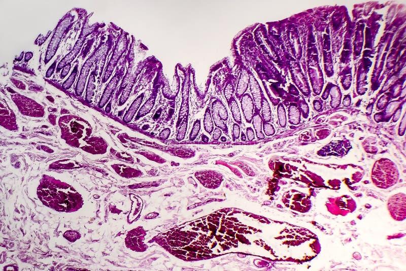 Adenocarcinoma vellosa de los dos puntos, micrográfo ligero imágenes de archivo libres de regalías