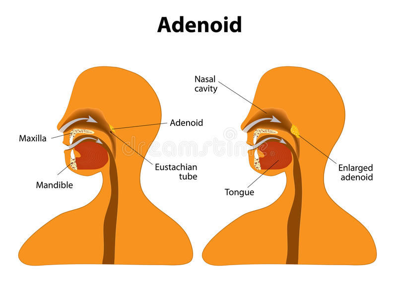 Adenoid Normal And Enlarged Adenoid Stock Vector Illustration Of