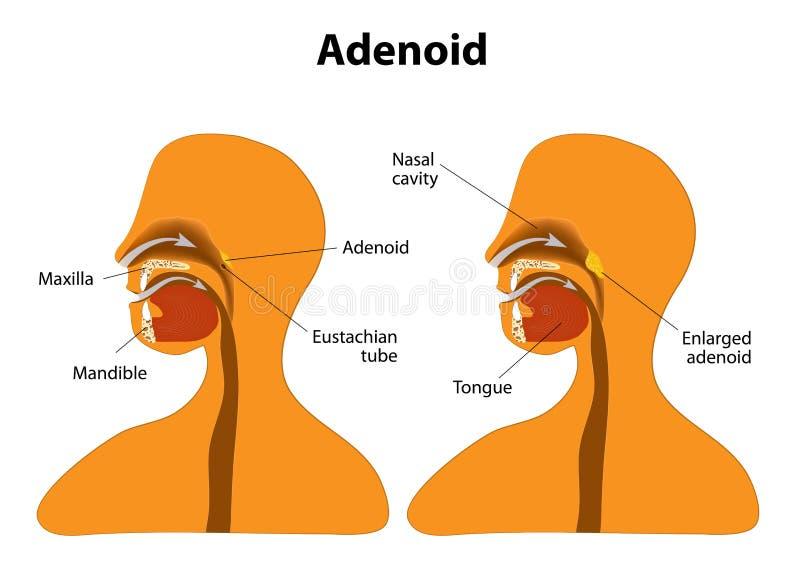 adenoid Normal och förstorad adenoid vektor illustrationer
