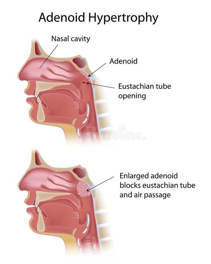 Adenoidalna hipertrofia ilustracja wektor