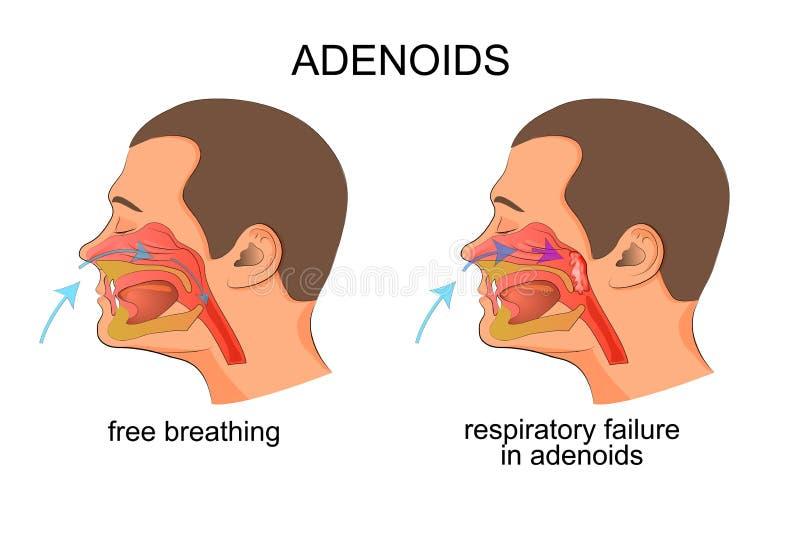Adenoiditis,呼吸失败 向量例证