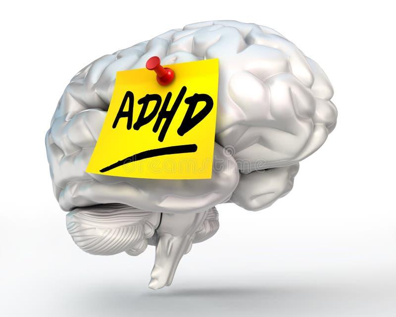 Adhd koloru żółtego notatka na mózg royalty ilustracja
