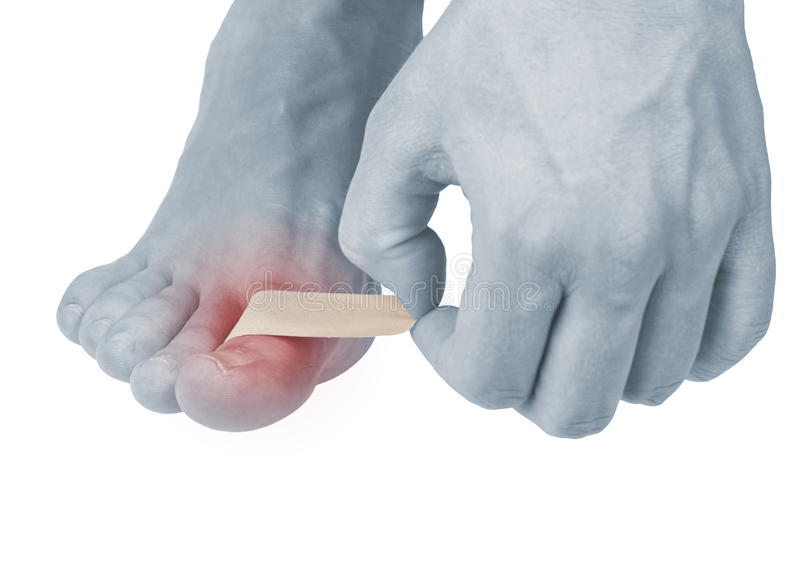 Download Adhesive Healing Plaster On Foot Finger. Stock Photo - Image: 28159148