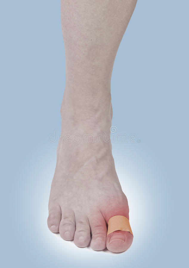 Download Adhesive Healing Plaster On Foot Finger. Royalty Free Stock Photography - Image: 28217787