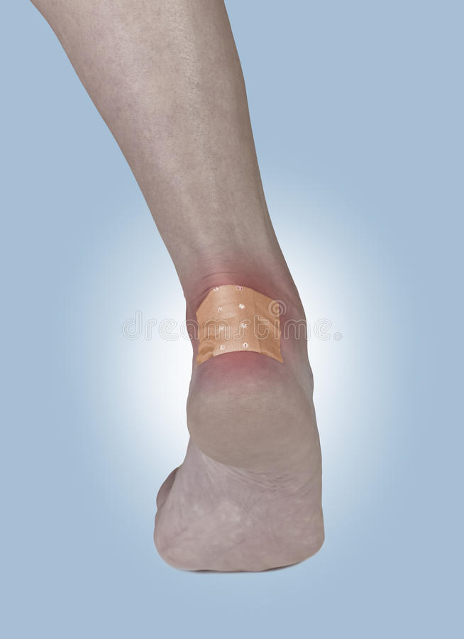 Download Adhesive Healing Plaster On The Heel. Stock Image - Image: 28047207