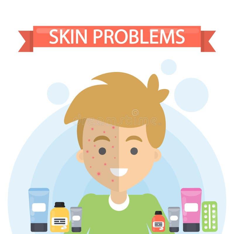 Adolescent avec la mauvaise peau illustration de vecteur