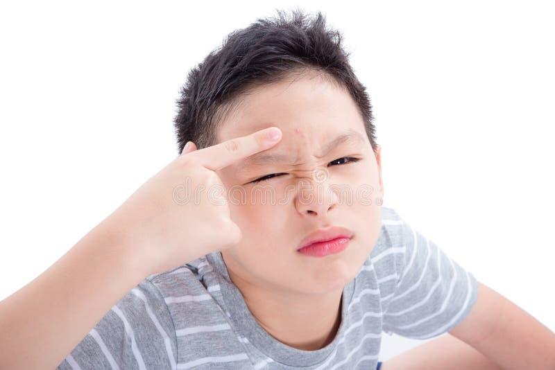 Adolescente com acne em sua cara sobre o branco foto de stock royalty free