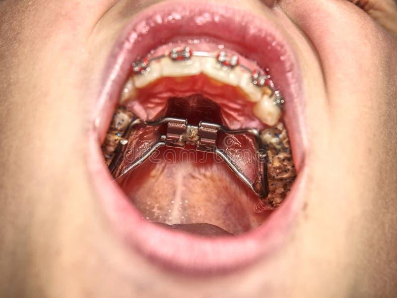 Adolescente com as cintas em seus dentes Tiro macro dos dentes com cintas foto de stock royalty free
