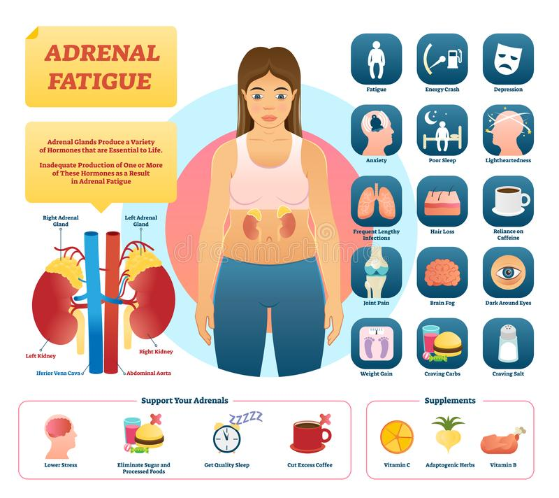 Adrenal fatigue vector illustration. List of glands disease symptoms. Adrenal fatigue vector illustration. List of glands disease symptoms like fatigue royalty free illustration