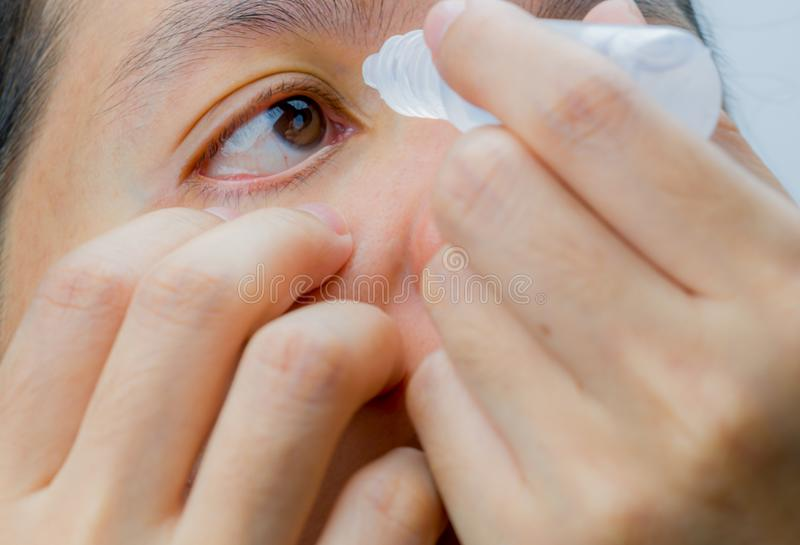 Adult Asian woman applying eye drops in her brown eyes. Eye care stock photos