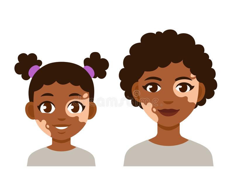 Adult and child with vitiligo. Adult woman and child with vitiligo. Cute cartoon black girl character, vector illustration royalty free illustration