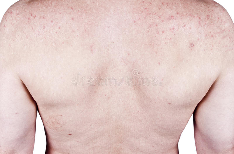Skin rash adult male