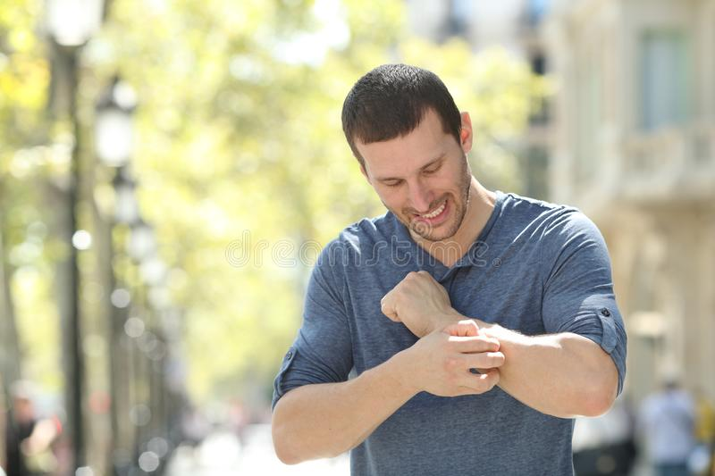 Adult man scratching itchy arm in the street. Overwhelmed adult man scratching itchy arm standing in the street royalty free stock photography