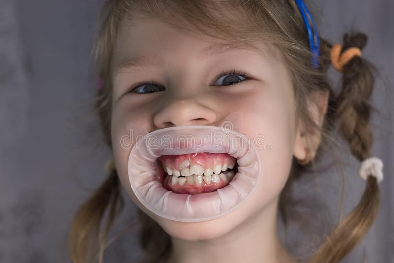 Adult permanent teeth coming in front of the child`s baby teeth: shark teeth. Little girl`s open mouth stock images