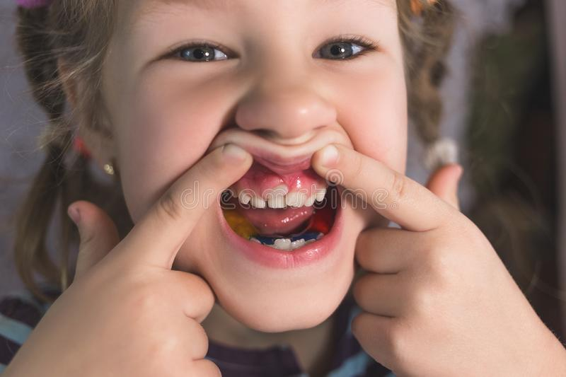 Adult permanent teeth coming in front of the child`s baby teeth: shark teeth. Little girl`s open mouth royalty free stock images