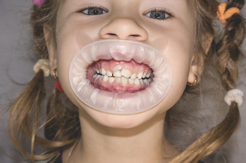 Adult permanent teeth coming in front of the child`s baby teeth: shark teeth. Little girl`s open mouth royalty free stock image