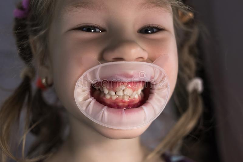 Adult permanent teeth coming in front of the child`s baby teeth: shark teeth. Little girl`s open mouth royalty free stock photos