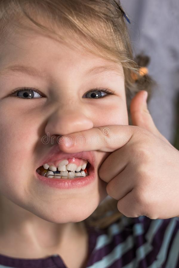 Adult permanent teeth coming in front of the child`s baby teeth: shark teeth. Little girl`s open mouth stock photo