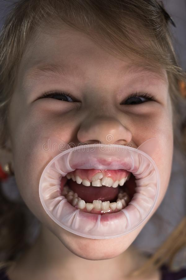 Adult permanent teeth coming in front of the child`s baby teeth: shark teeth. Little girl`s open mouth royalty free stock photo