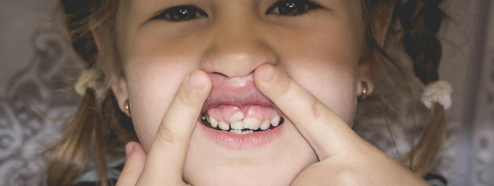 Adult permanent teeth coming in front of the child`s baby teeth: shark teeth. Little girl`s open mouth stock photos
